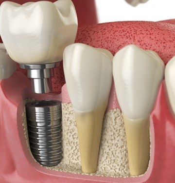 Model of dental implant supported crown
